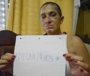 foto: La torturó 5 horas y se mató frente a ella: