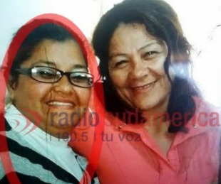 foto: Hospital Vidal: Evoluciona favorablemente la mujer quemada