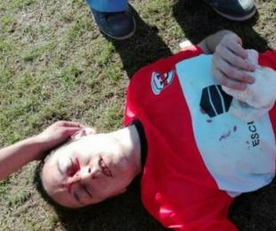 foto: Córdoba: brutal batalla campal en el fútbol femenino
