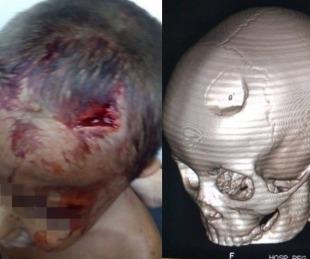 foto: Joven le partió la cabeza a un nene de 4 años porque lo molestaba