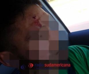 foto: Grupo musical armaba su escenario y fue violentamente agredido