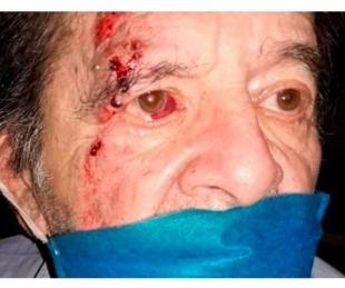 foto: Empleado de supermercado golpeó a un jubilado y lo dejó en terapia