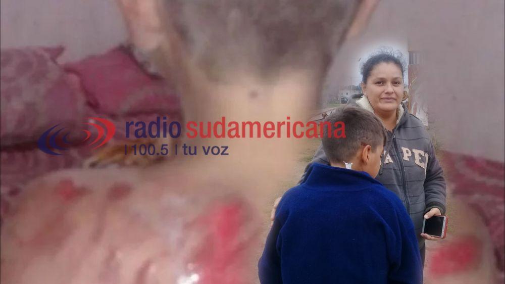 Habló el nene golpeado en La Olla: Me arrastraron por el ripio