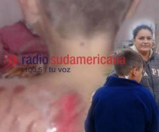 foto: Habló el nene golpeado en La Olla: