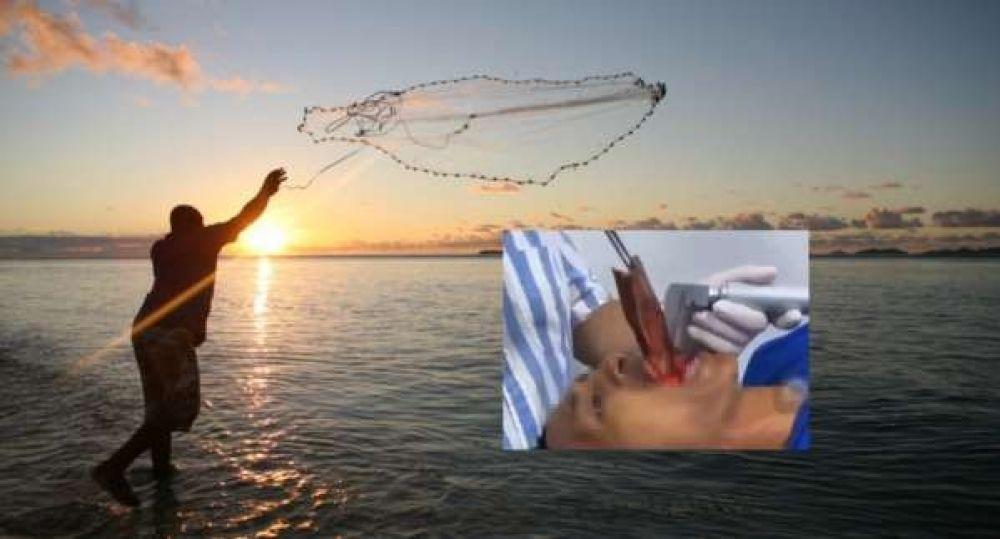 Extraen un pez vivo de la garganta de un pescador