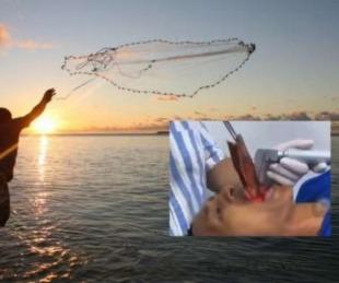 foto: Extraen un pez vivo de la garganta de un pescador