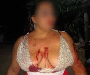 foto: Esquina: brutal pelea entre dos mujeres tras una noche de fiesta
