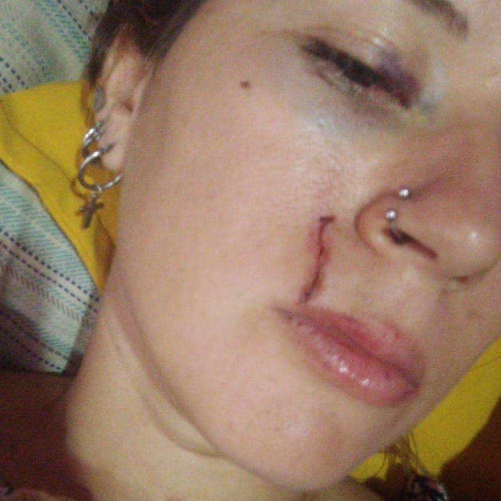 Esquina: Habló una de las mujeres involucradas en una pelea