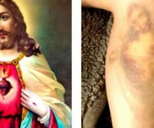 foto: En Semana Santa: se golpeó y le salió un moretón con la cara de Jesús