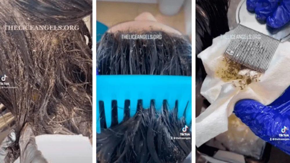 Filmaron a millones de piojos sobre la cabeza de una nena