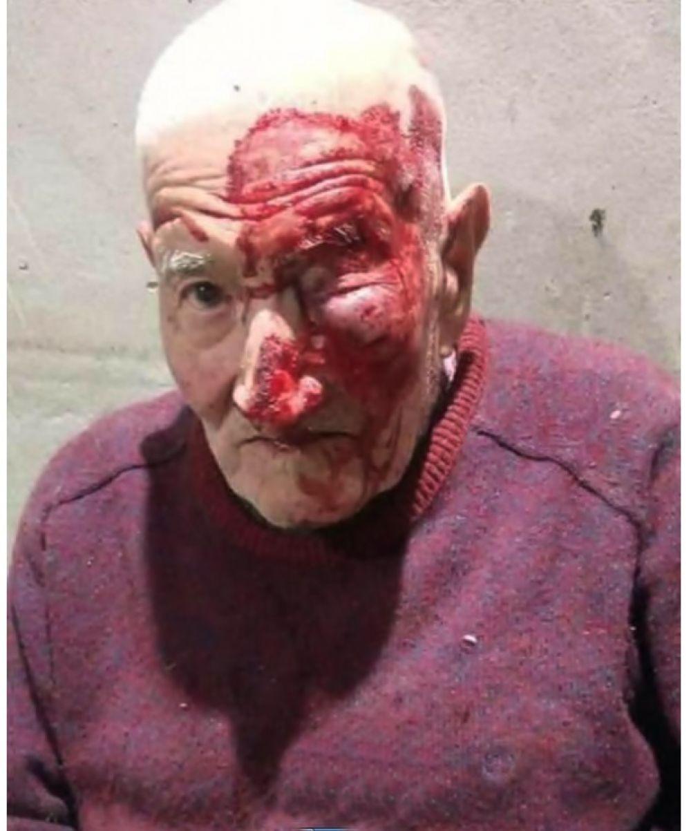Mercedes: golpearon a un anciano hasta dejarlo inconsciente