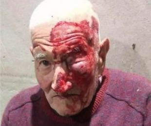 foto: Mercedes: golpearon a un anciano hasta dejarlo inconsciente