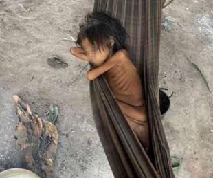 foto: Brasil: La impactante foto de una nena de 8 años que pesa 12 kilos