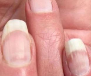 foto: En las uñas se puede detectar si alguien tuvo Covid-19 asintomático