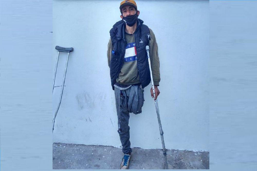 Sufrieron amputaciones en sus piernas y ahora roban en muletas