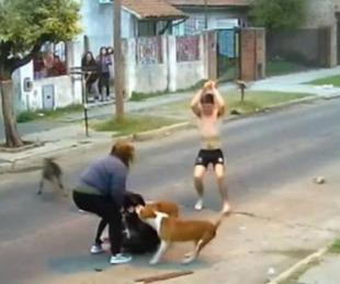 foto: Mujer fue atacada por tres perros pitbull: recibió 11 puntos