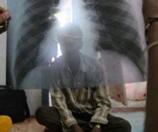 foto: La vacuna BCG contra la tuberculosis podría frenar la COVID-19