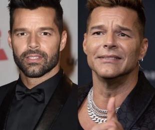 foto: Catarata de memes por el ¿retoque estético? de Ricky Martin