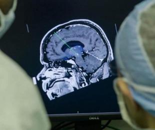 Un implante cerebral que elimina los pensamientos negativos genera polémica