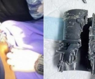 foto: Se agrandó el pene pero se atascó en un tubo que usó para comprobar el nuevo tamaño